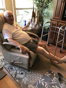 Bob's Total Knee Replacement Journey